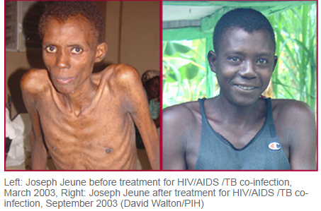 Joseph Jeune before treatment for HIV/AIDS/TB co-infection on the left picture, March 2003 and on the right after treatment September 2003